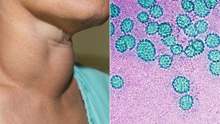 hpv vírus hogyan