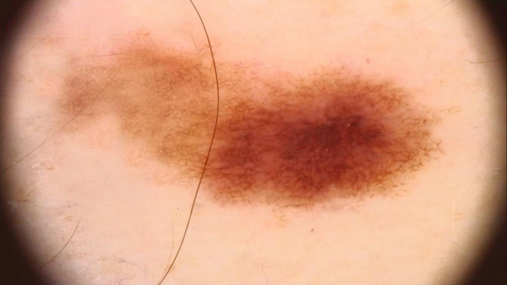 hpv vírus és bőrrák)