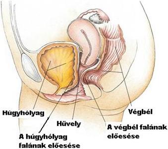 hüvelyfal condyloma