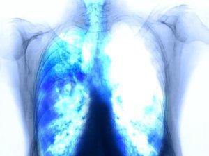 Légszomj, görcsök, puffadás: ezek a rákmegelőző stádium tünetei - EgészségKalauz