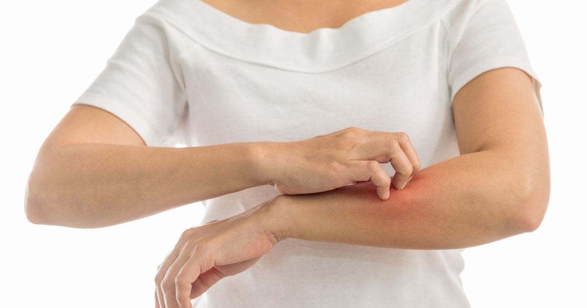 A leggyakoribb bőrbetegségek - fotókkal! - karpitosrugo.hu - Egészség és Életmódmagazin