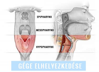 nyirok rosszindulatú daganata)
