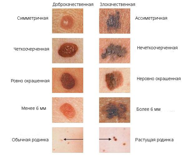 papillómák a méhben)