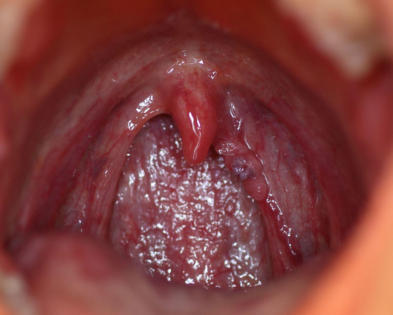 papilloma nghia la gi