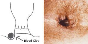 papilloma végbélnyílás tünetei