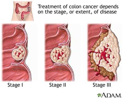 A rák korai tünetei férfiaknál