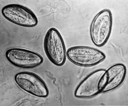 reproduktív enterobiasis