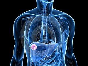szarkóma rák gyógyulási aránya