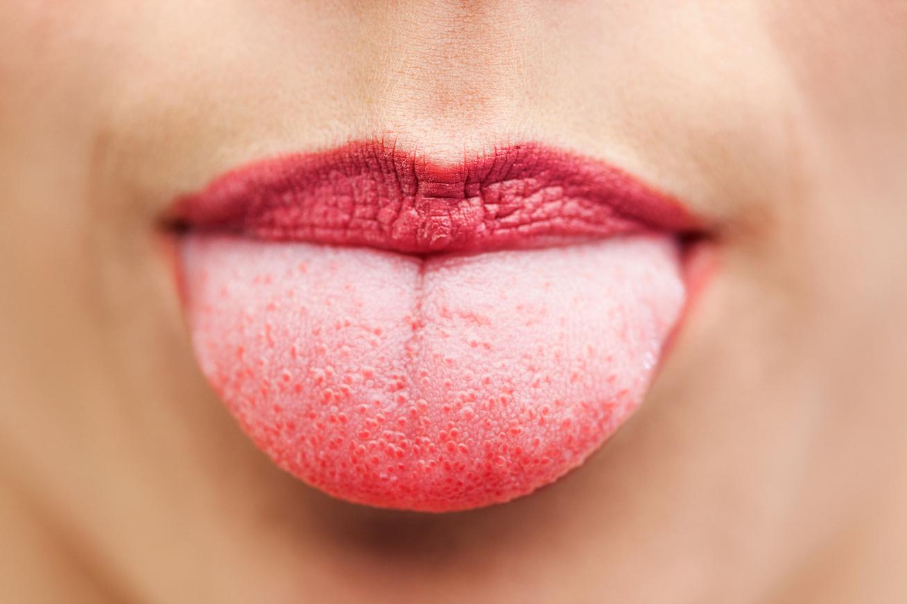 szemölcsök a nyelv nem fájdalmas)