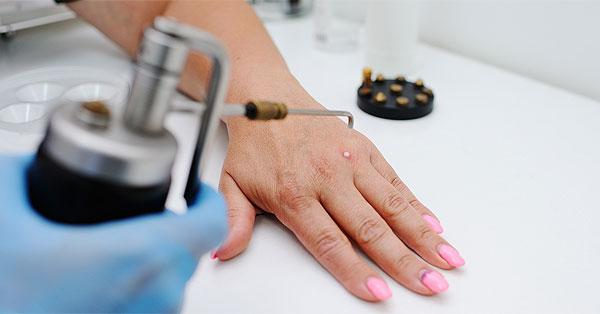 enterobius vermicularis vizsgálat a helminták okozta betegségek