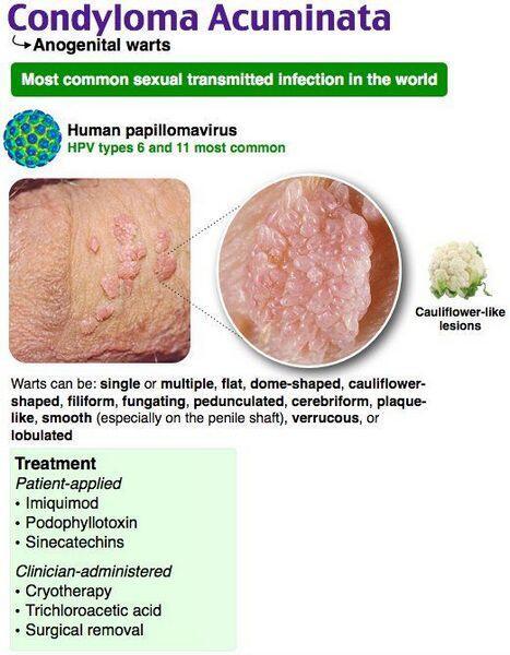 condyloma a homlokán parazita készítmények