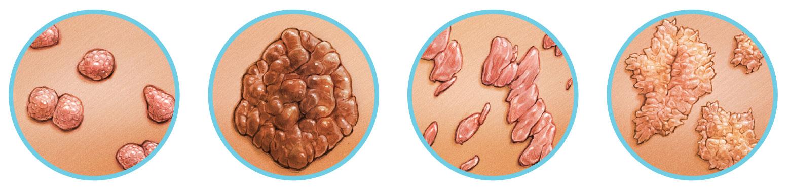 nemi szemölcsök és onkológia