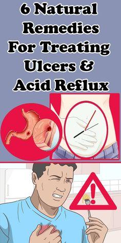 reflux parazita