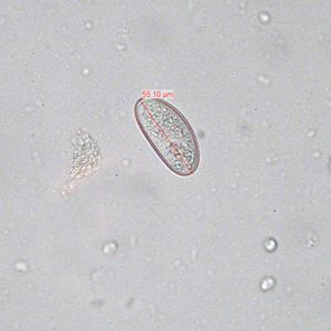 enterobius vermicularis vizsgálat