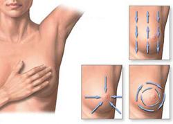 Milyen tünetek utalhatnak mellrákra? - EgészségKalauz
