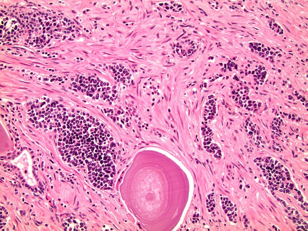 neuroendokrin rák a nyirokcsomókban