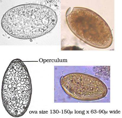 Granuloma cerebralis, schistosomiasis