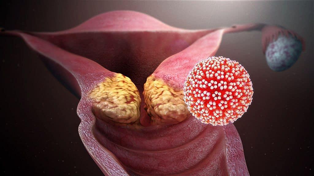 humán papillomavírus terhességi kezelés alatt
