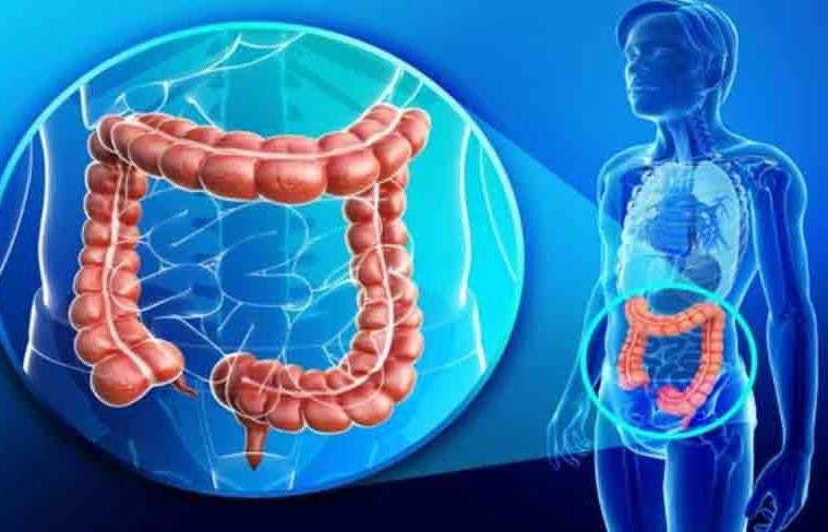 féregeket tartalmazó fogyókúrás termékek férgek a végbélnyílás kezelésében