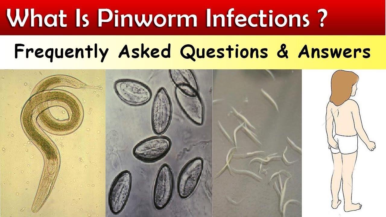 ropogós pinworm tünetek