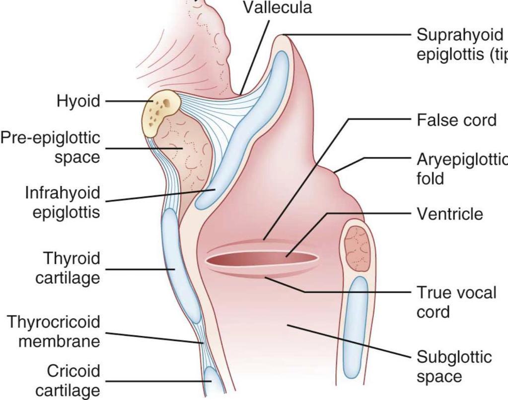 fiatalkori gége papillomatosis tracheostomia