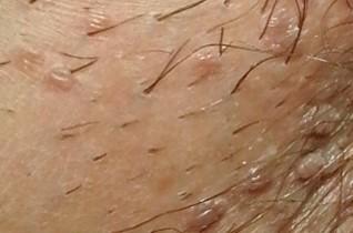 borsmenta pinworms mely orvos kezeli a test papillómáit