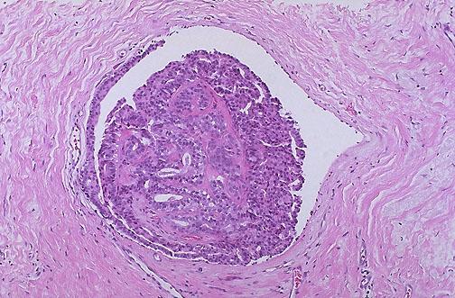 intraductalis papilloma laktáció)