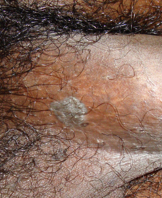 mi a papilloma és a condyloma gomba elleni gyógyszer candida paraziták ellen