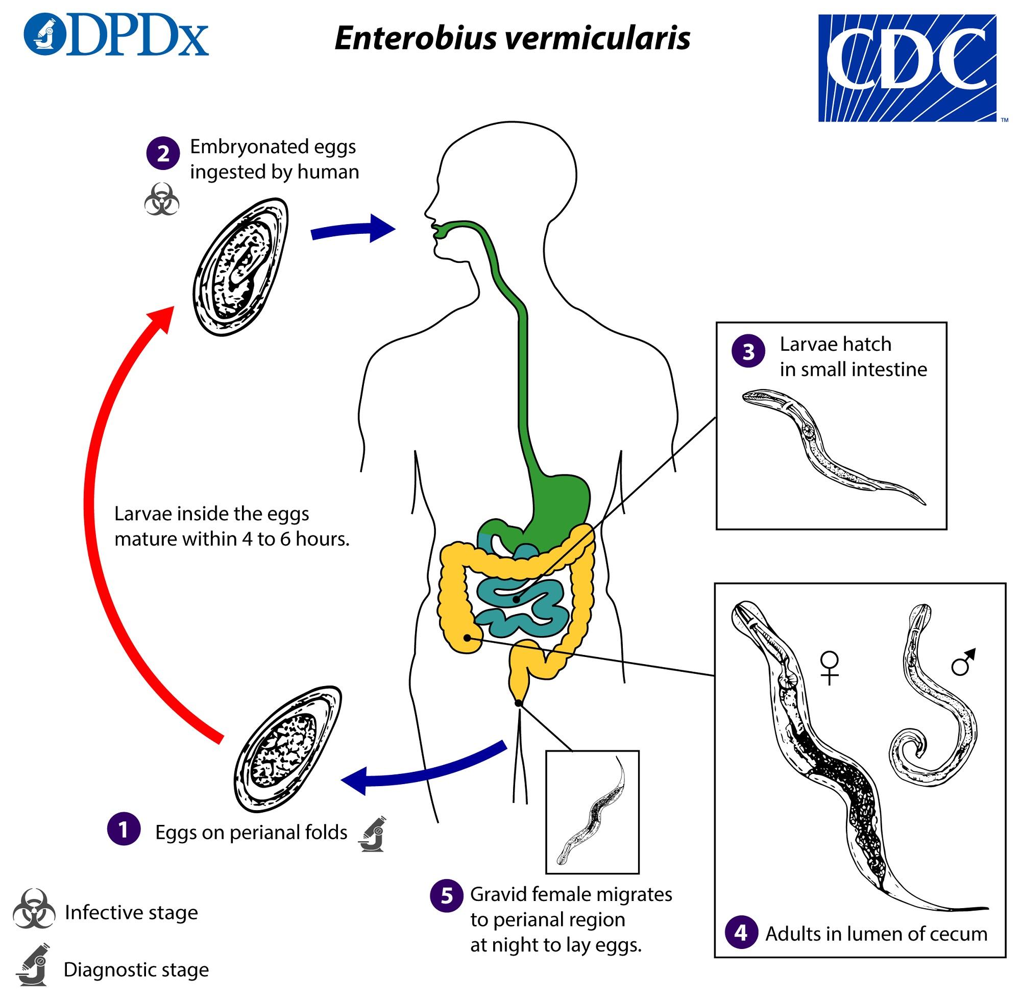 enterobiasis enterobius vermicularis által)