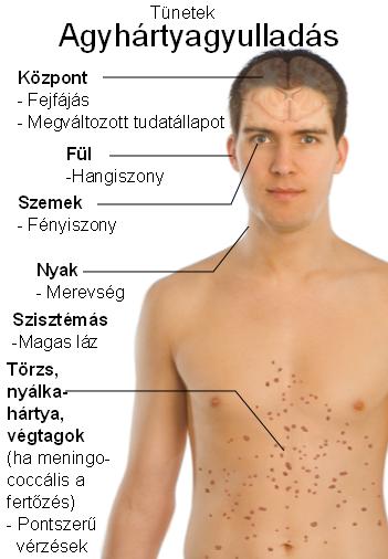 Fertőzéseink, fertőző betegségeink - EgészségKalauz