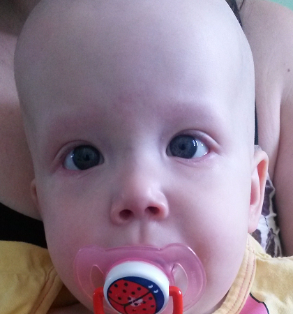 vérszegénység egy 2 éves gyermeknél)
