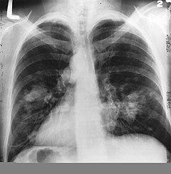 Tüdő tünetek inváziója
