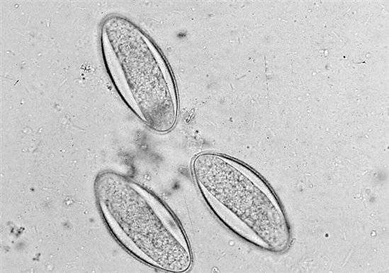 A gyermekekben a pinworm fertőzés jelei - Pinworm diagnosztizálása gyermekeknél