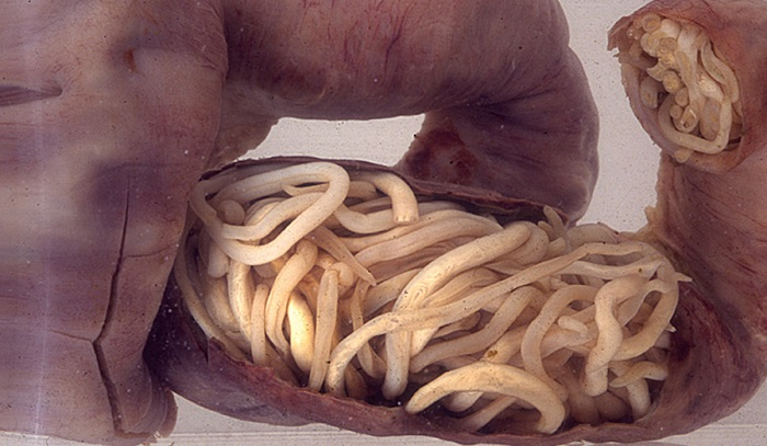 crevni paraziták kódja ljudi