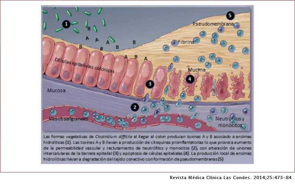 clostridium toxinok)