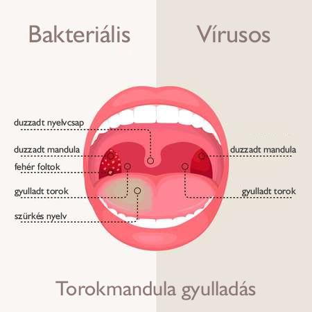 mandulagyulladás kezelése papilloma