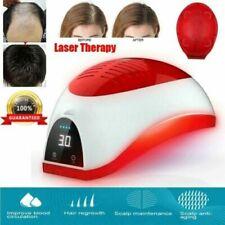 helmint terápia alopecia
