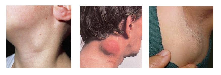 agresszív rák lymphoma