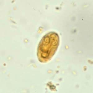 paraziták kezelés jelei a papilloma vírus tünetei emberben