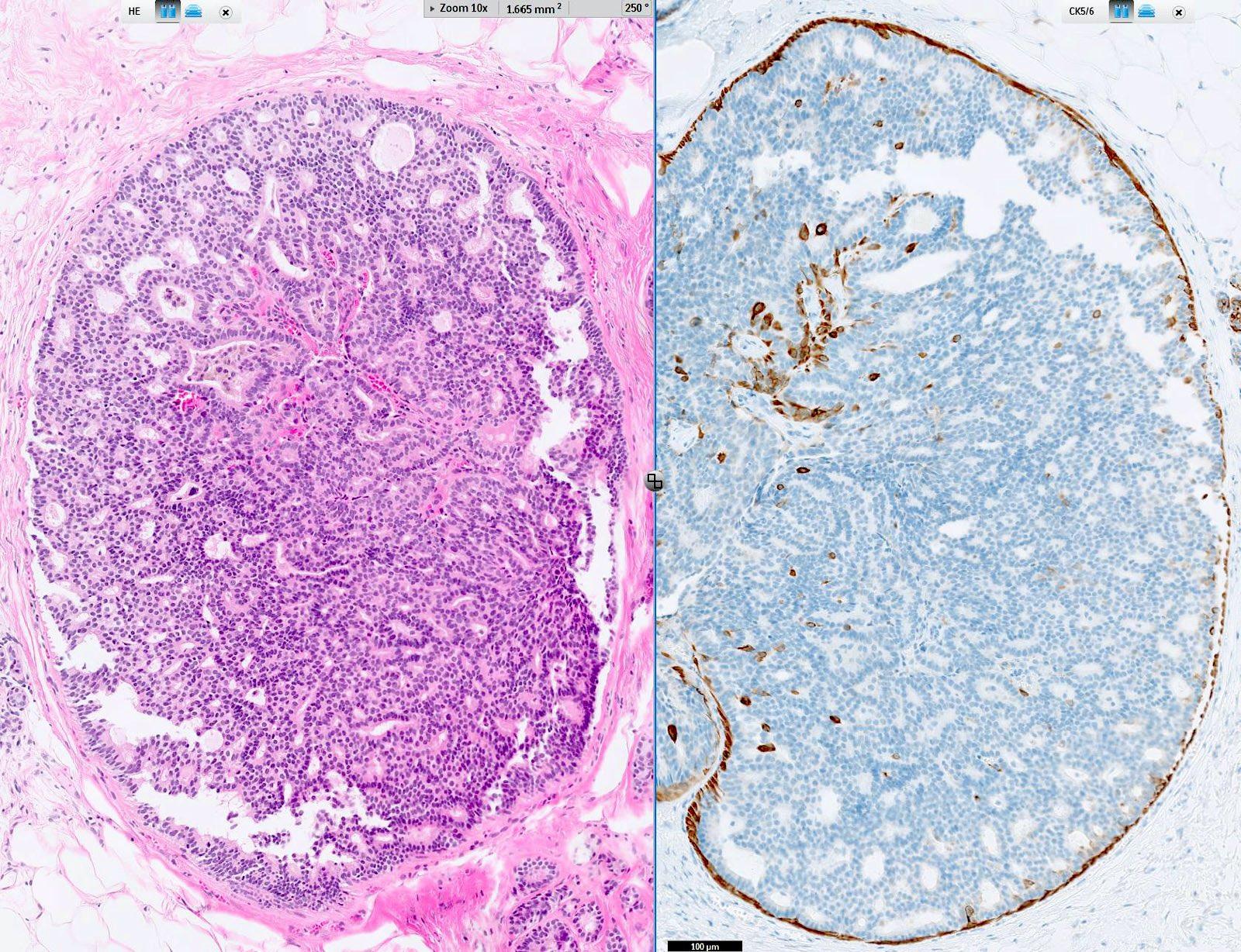 intraductalis papilloma atipikus sejtekkel)