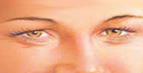 Papilloma a szemhéjon: hogyan lehet eltávolítani, hogyan lehet kezelni, az okokat - Carcinoma