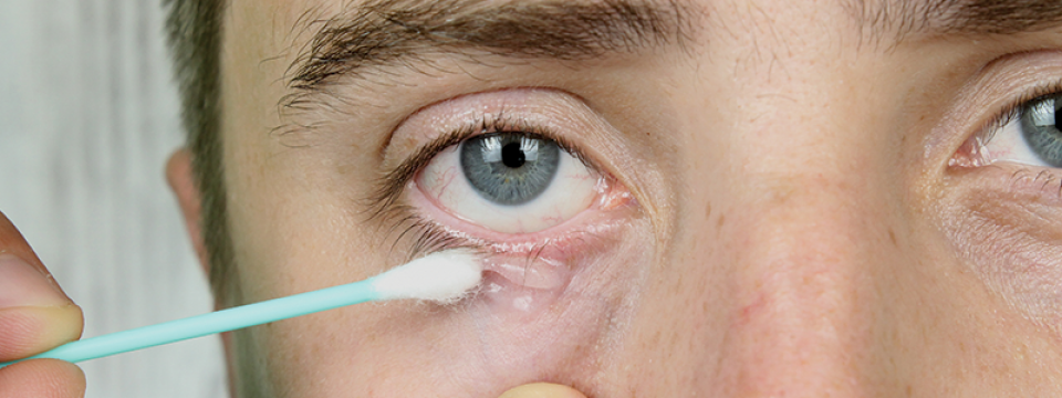 Minden, amit férfiként a HPV-ről és a nemi szervi szemölcsökről tudnod kell!
