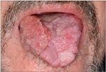 papilloma a szájban tünetek)