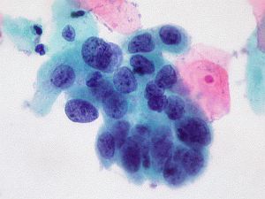 papillomavírus sejt kenet)