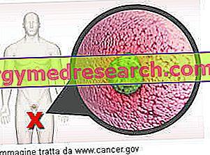 rektális rák nyirokcsomó terjed)